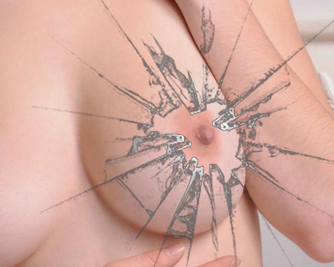 Лечение трещин сосков при грудном вскармливании